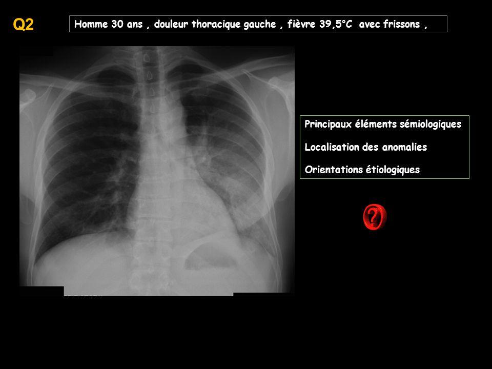 Q2 Homme 30 ans , douleur thoracique gauche , fièvre 39,5°C avec frissons , Principaux éléments sémiologiques.