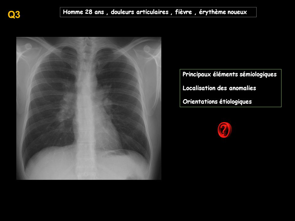 Q3 Homme 28 ans , douleurs articulaires , fièvre , érythème noueux