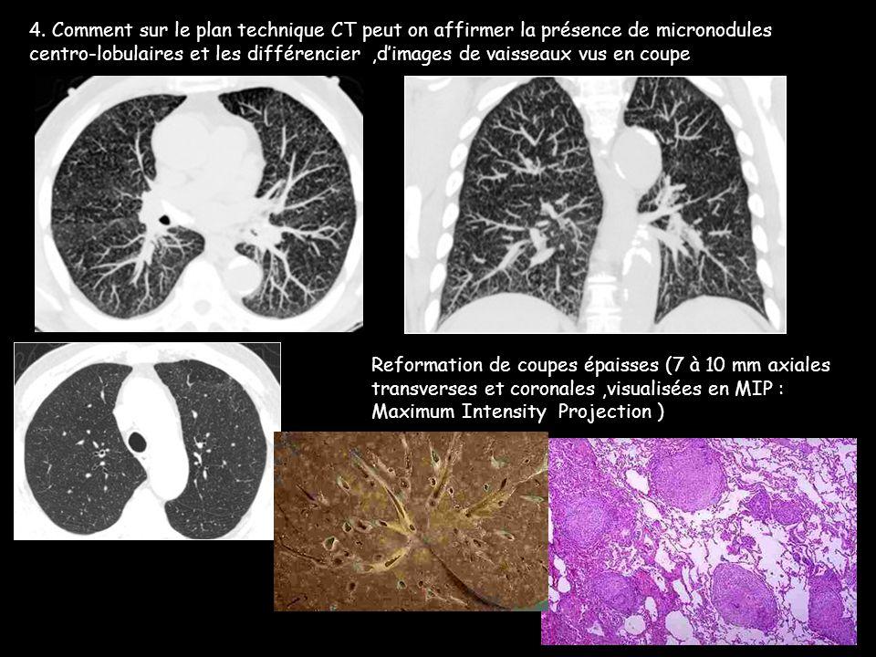 4. Comment sur le plan technique CT peut on affirmer la présence de micronodules centro-lobulaires et les différencier ,d'images de vaisseaux vus en coupe