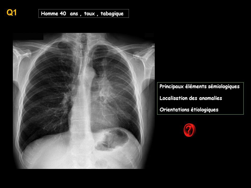 Q1 Homme 40 ans , toux , tabagique Principaux éléments sémiologiques