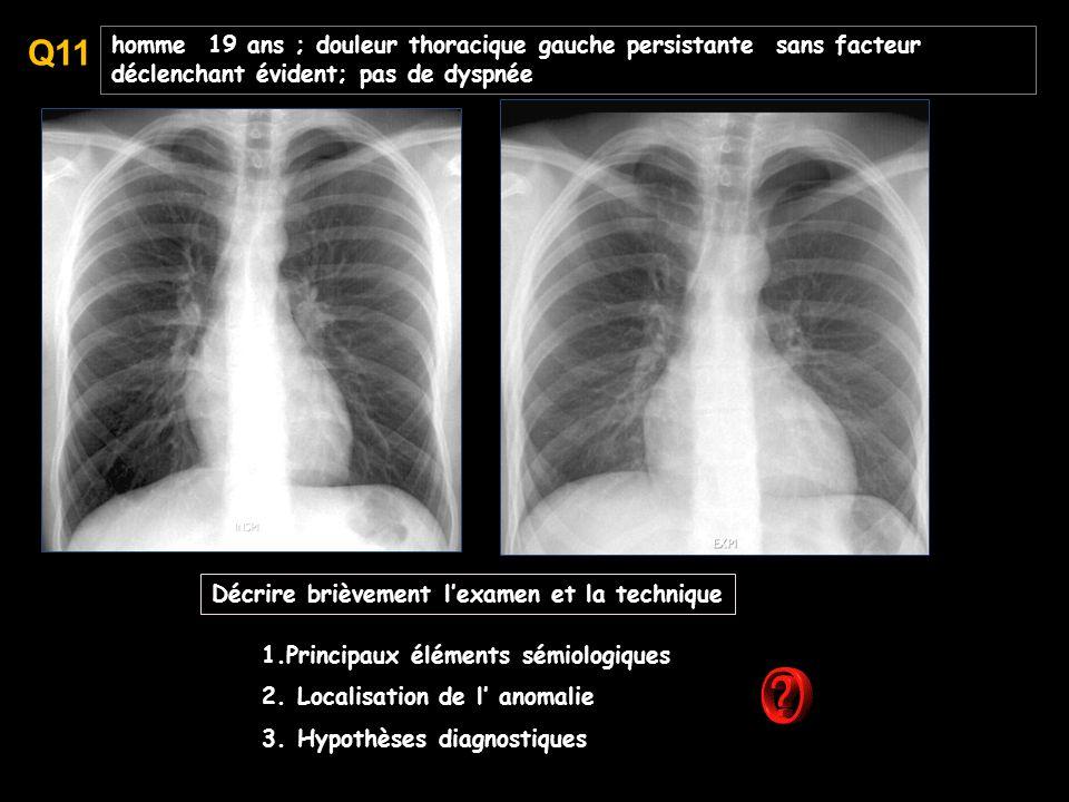 Q11 homme 19 ans ; douleur thoracique gauche persistante sans facteur déclenchant évident; pas de dyspnée.
