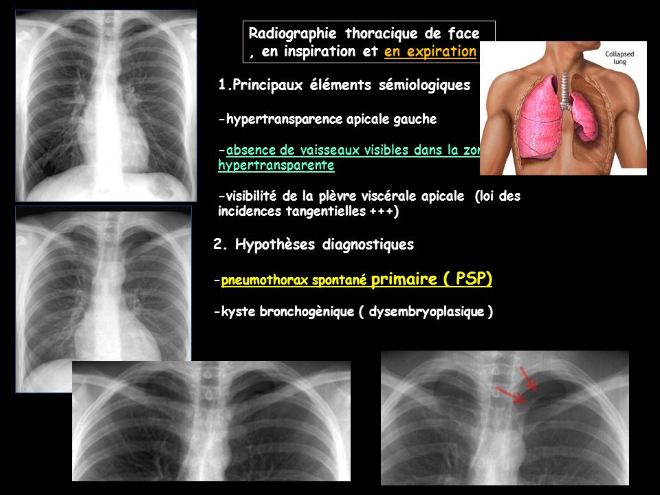 pneumothorax essay A pneumothorax, as well as atelectasis, is a collapsed lung - with one primary difference a pneumothorax involves puncture of the pleural lining of the lung, releasing air into the chest cavity.