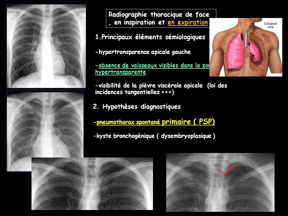 Radiographie thoracique de face , en inspiration et en expiration