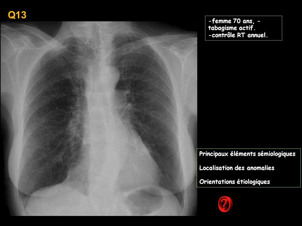 Q13 -femme 70 ans, -tabagisme actif. -contrôle RT annuel.
