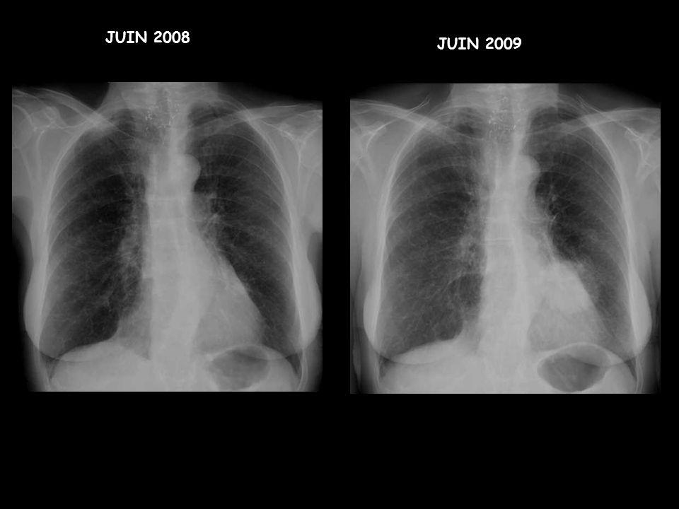 JUIN 2008 JUIN 2009