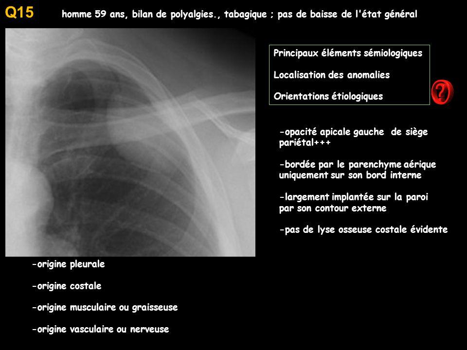 Q15 homme 59 ans, bilan de polyalgies., tabagique ; pas de baisse de l état général. Principaux éléments sémiologiques.