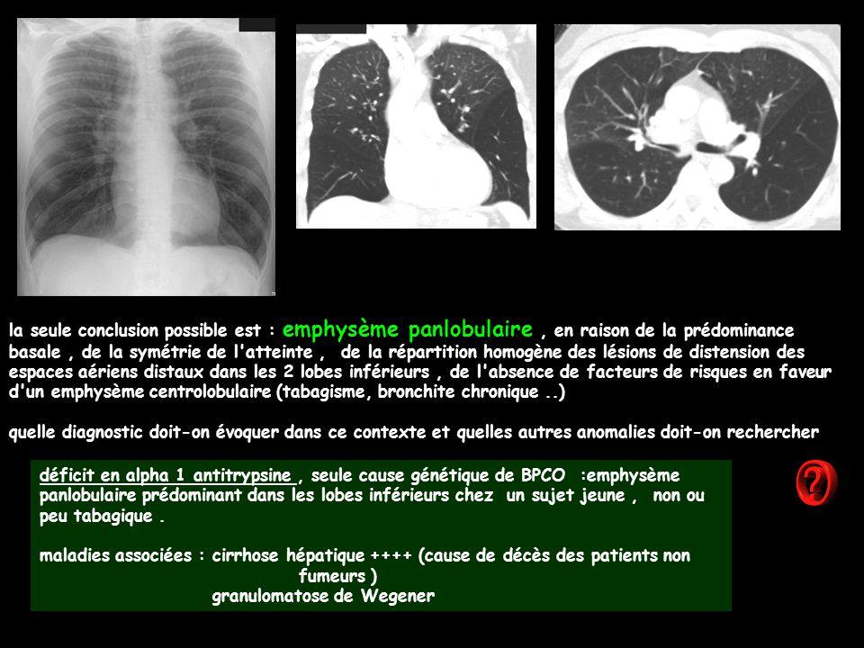 la seule conclusion possible est : emphysème panlobulaire , en raison de la prédominance basale , de la symétrie de l atteinte , de la répartition homogène des lésions de distension des espaces aériens distaux dans les 2 lobes inférieurs , de l absence de facteurs de risques en faveur d un emphysème centrolobulaire (tabagisme, bronchite chronique ..)