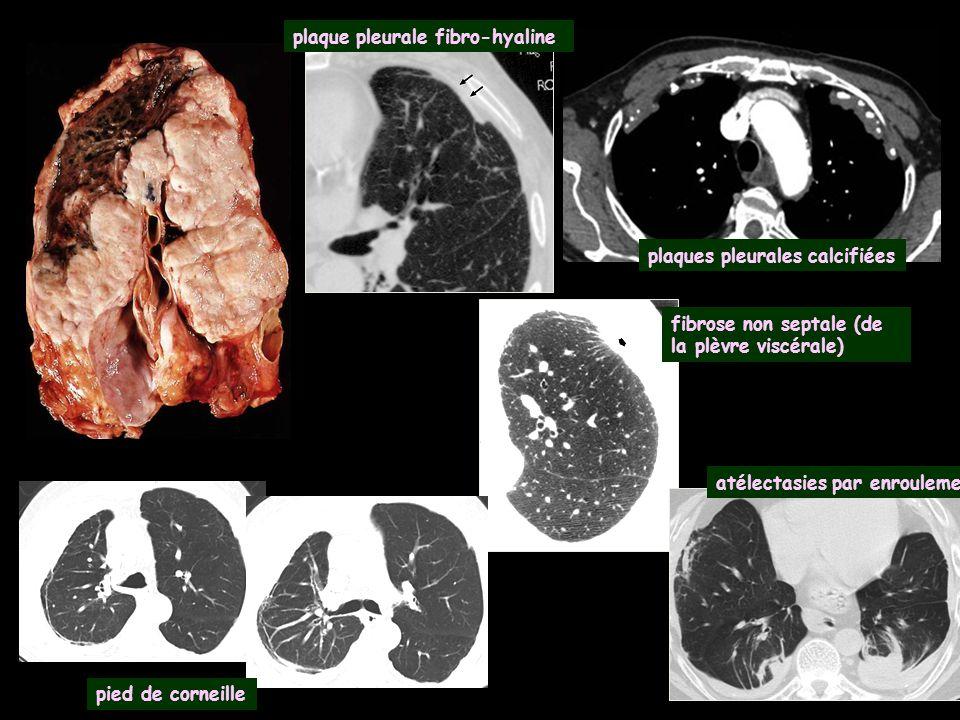 plaque pleurale fibro-hyaline