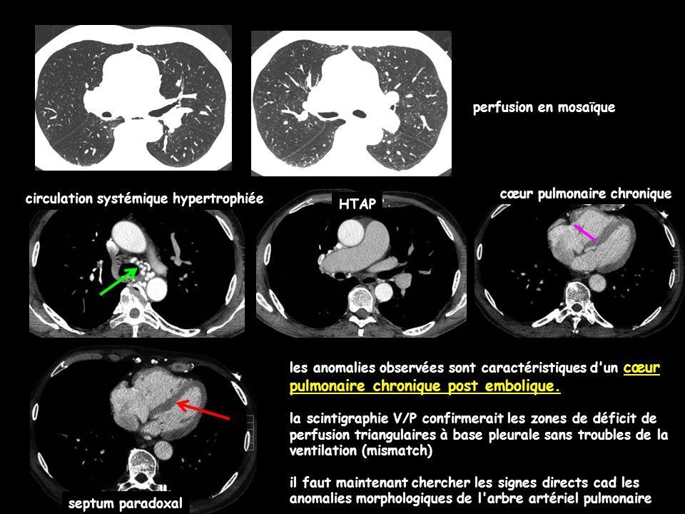 perfusion en mosaïque cœur pulmonaire chronique. circulation systémique hypertrophiée. HTAP. septum paradoxal.