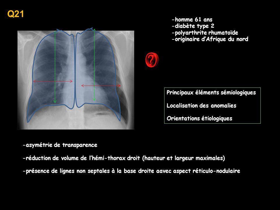 Q21 -homme 61 ans -diabète type 2 -polyarthrite rhumatoïde