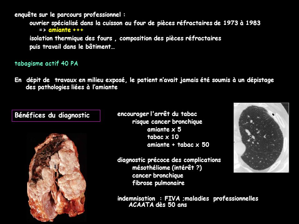 Bénéfices du diagnostic