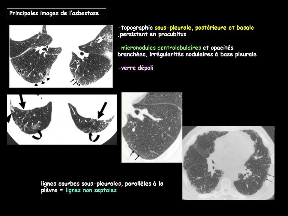 Principales images de l'asbestose