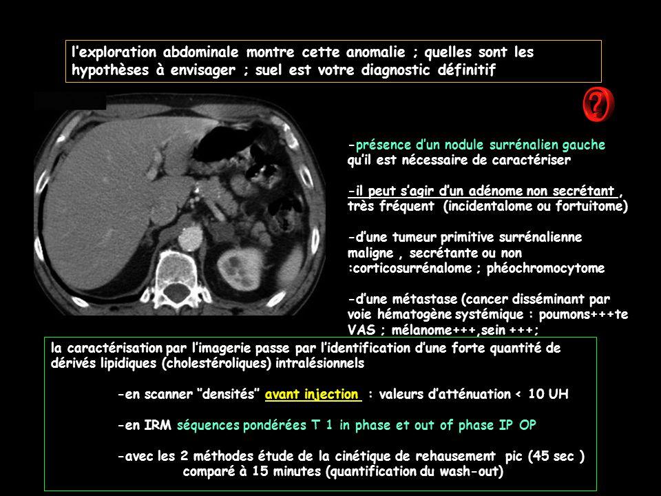l'exploration abdominale montre cette anomalie ; quelles sont les hypothèses à envisager ; suel est votre diagnostic définitif