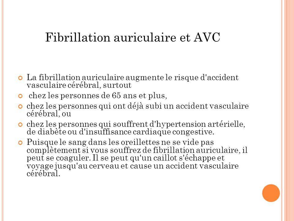 Fibrillation auriculaire et AVC