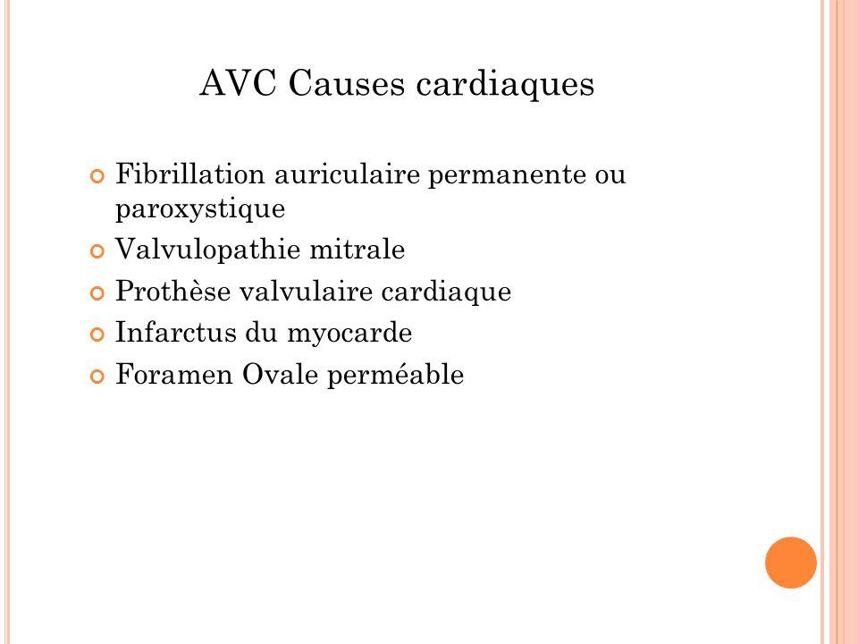 AVC Causes cardiaques Fibrillation auriculaire permanente ou paroxystique. Valvulopathie mitrale.