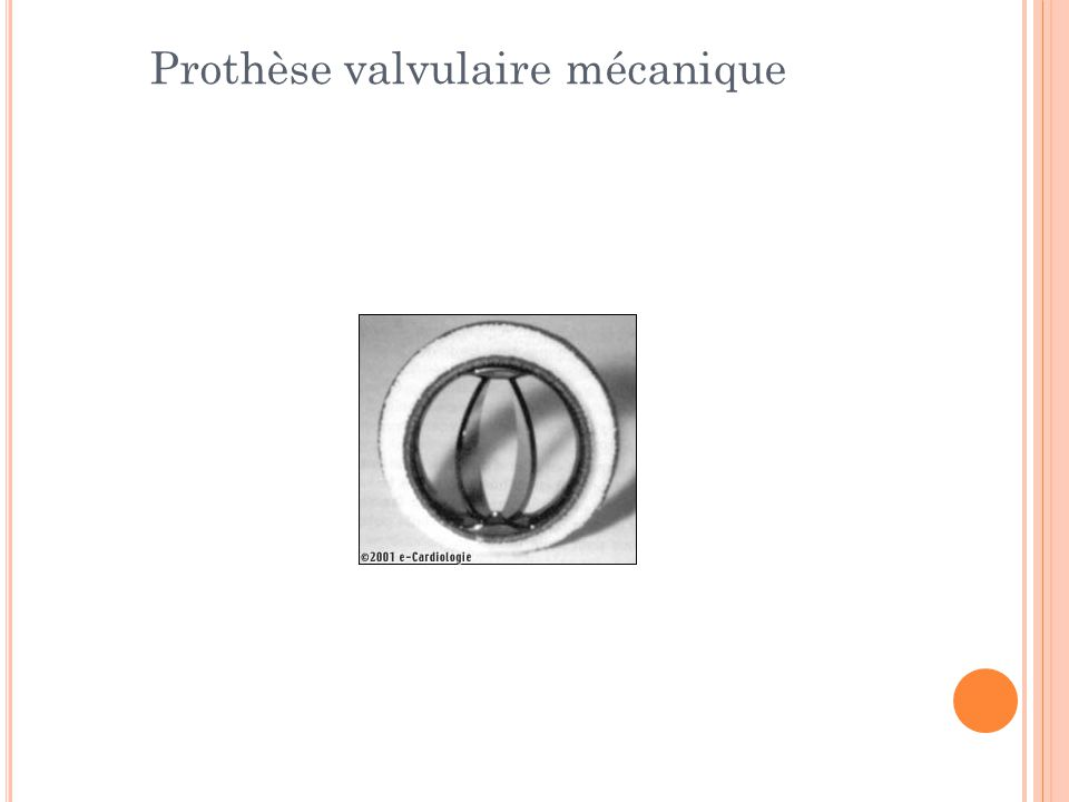 Prothèse valvulaire mécanique