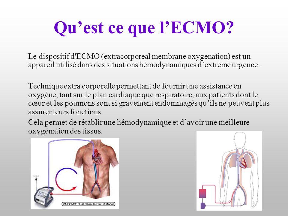 Qu'est ce que l'ECMO