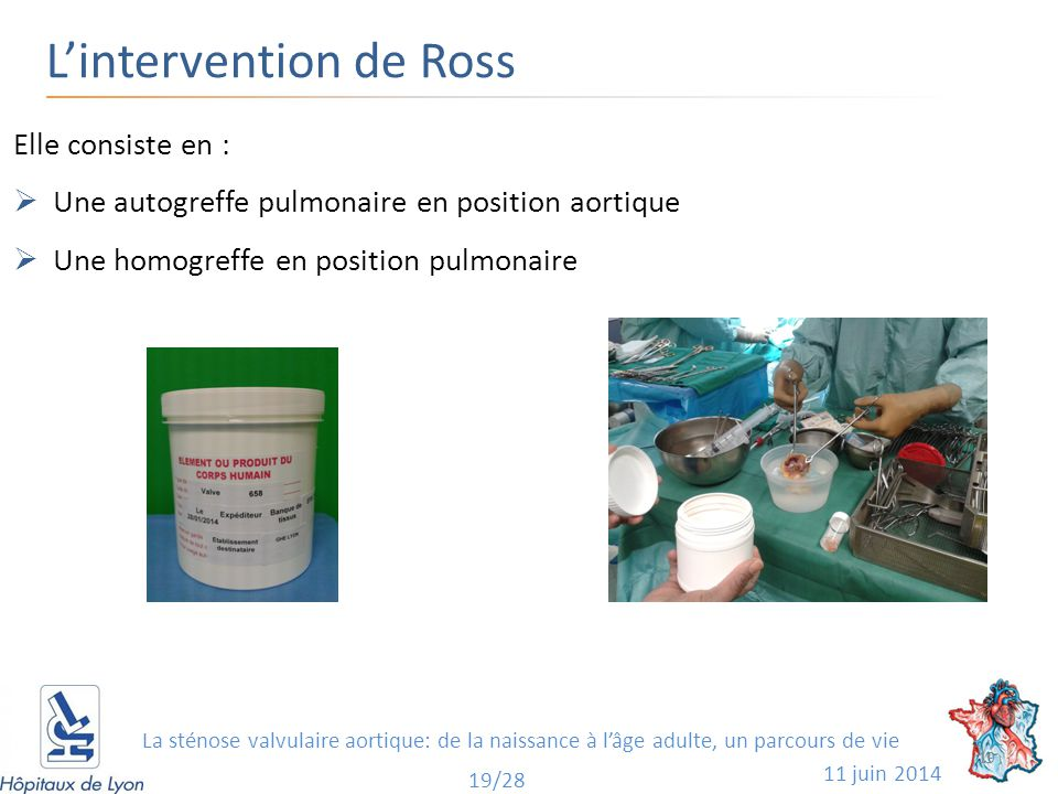 L'intervention de Ross