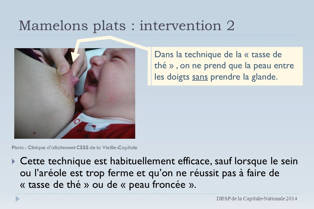 Mamelons plats : intervention 2