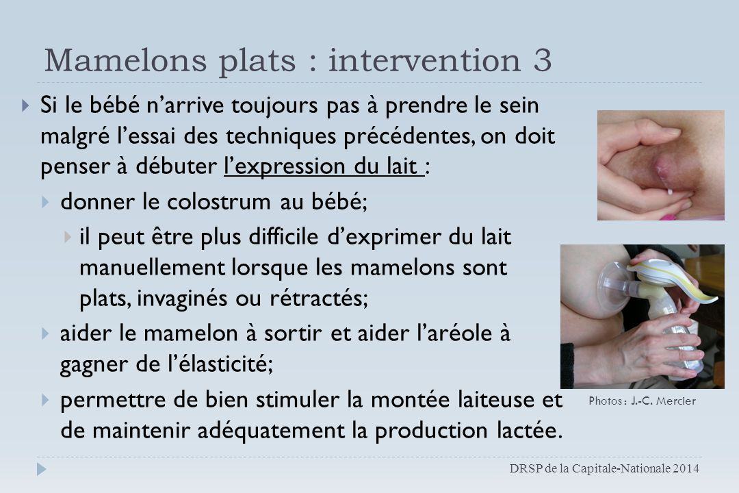 Mamelons plats : intervention 3