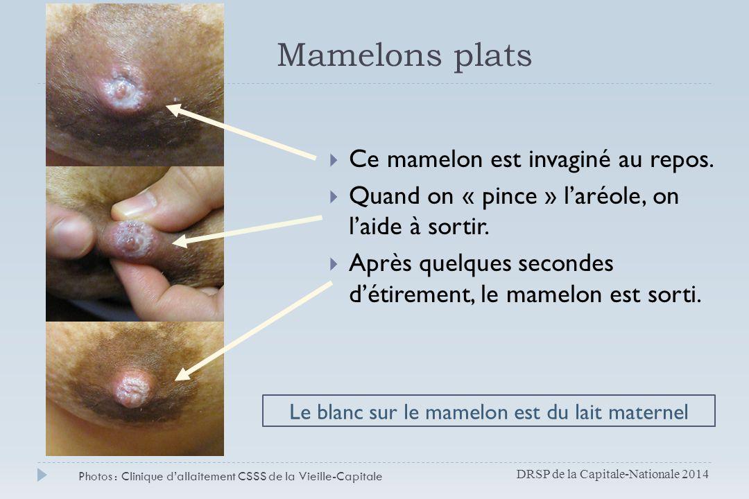 Mamelons plats Ce mamelon est invaginé au repos.