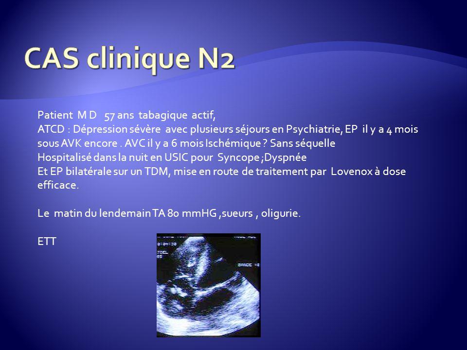 CAS clinique N2 Patient M D 57 ans tabagique actif,
