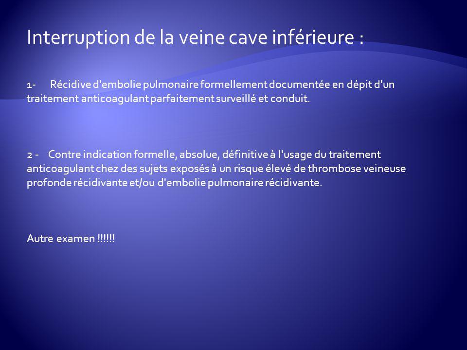 Interruption de la veine cave inférieure :