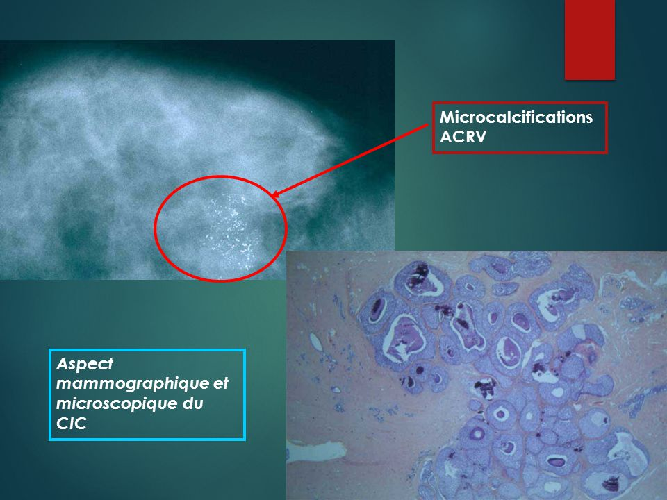 Microcalcifications ACRV