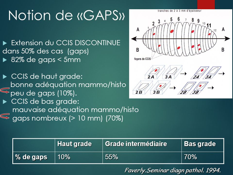 Notion de «GAPS» Extension du CCIS DISCONTINUE dans 50% des cas (gaps)