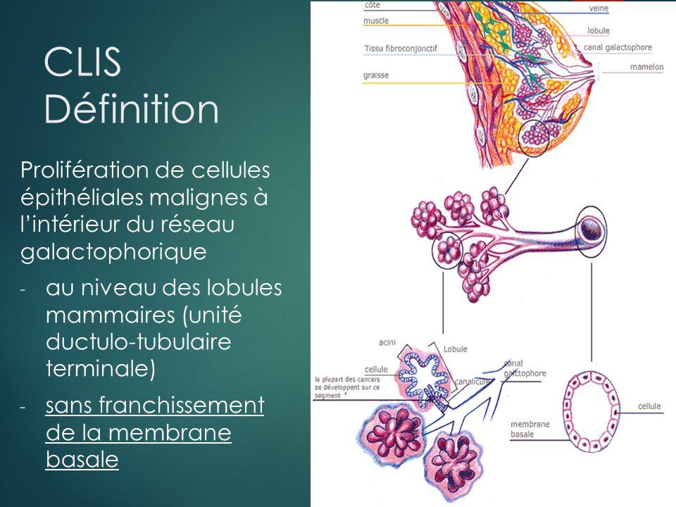 CLIS Définition Prolifération de cellules épithéliales malignes à l'intérieur du réseau galactophorique.