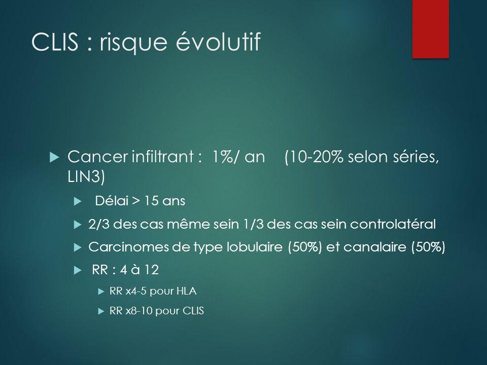 CLIS : risque évolutif Cancer infiltrant : 1%/ an (10-20% selon séries, LIN3) Délai > 15 ans.