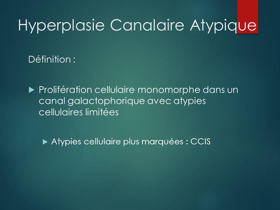 Hyperplasie Canalaire Atypique