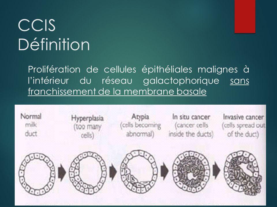 CCIS Définition Prolifération de cellules épithéliales malignes à l'intérieur du réseau galactophorique sans franchissement de la membrane basale.