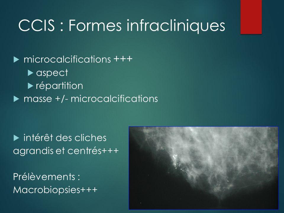 CCIS : Formes infracliniques