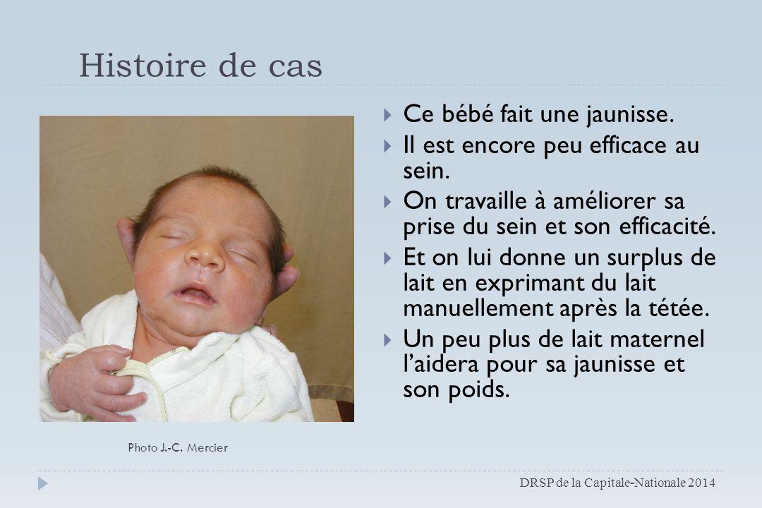 Histoire de cas Ce bébé fait une jaunisse.