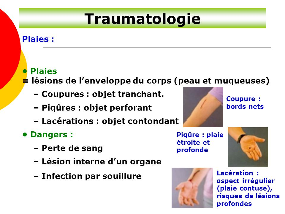 Traumatologie Plaies : • Plaies