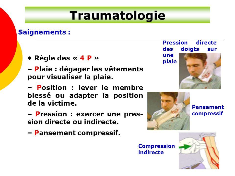 Traumatologie Saignements : • Règle des « 4 P »