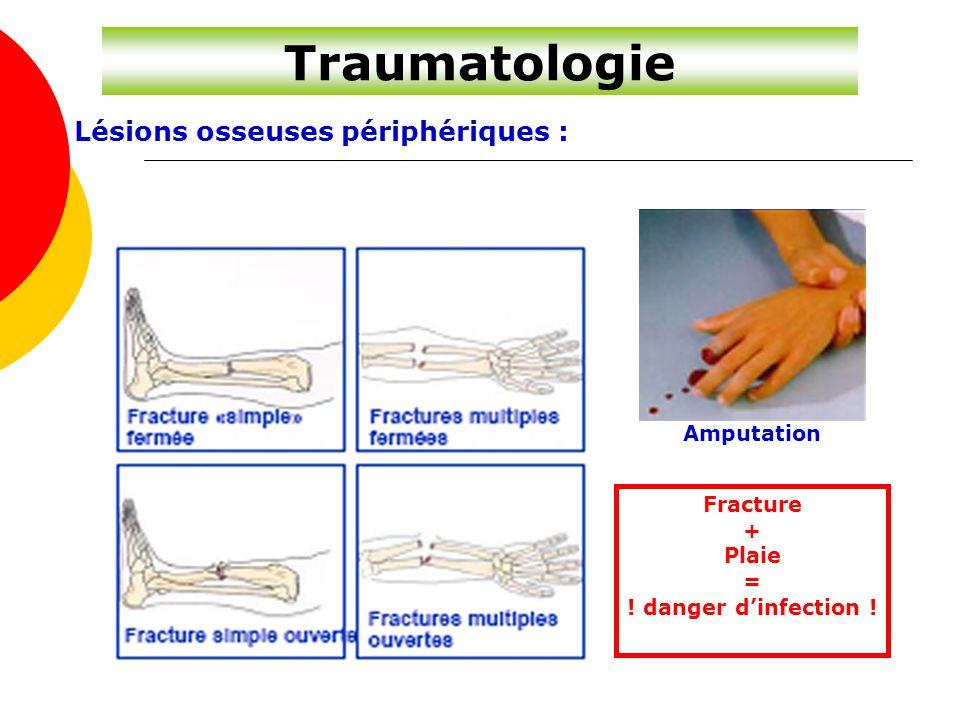 Traumatologie Lésions osseuses périphériques : Amputation Fracture +