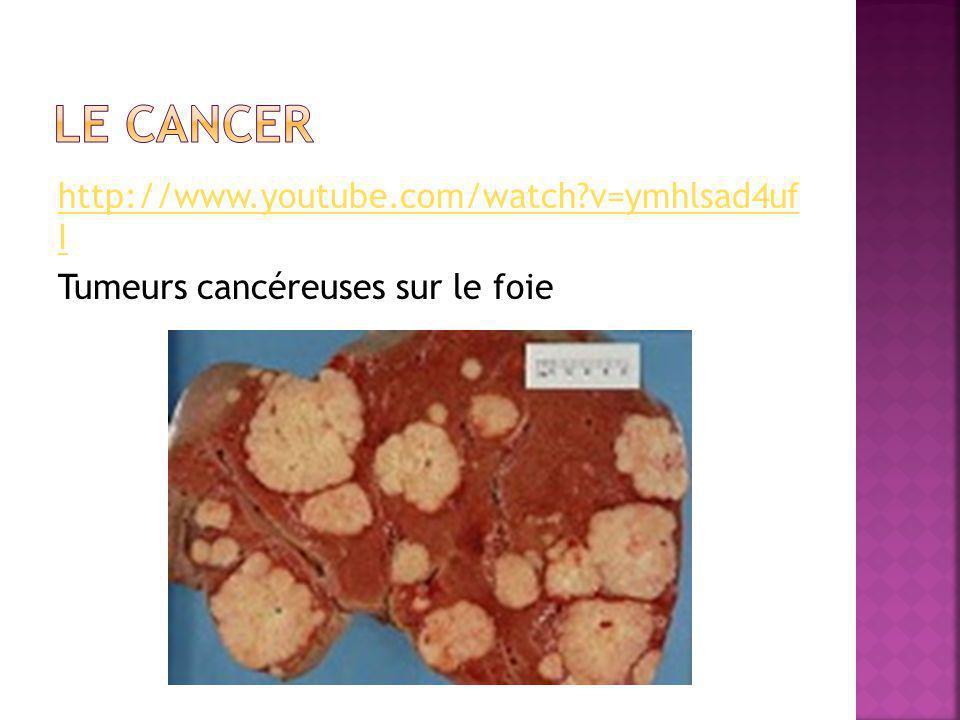 Le cancer http://www.youtube.com/watch v=ymhlsad4uf I Tumeurs cancéreuses sur le foie