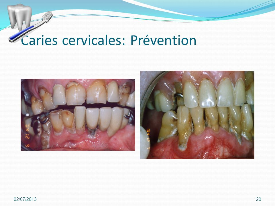 Caries cervicales: Prévention