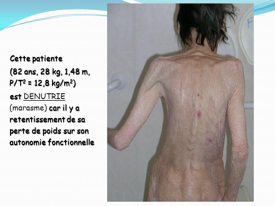 Cette patiente (82 ans, 28 kg, 1,48 m, P/T2 = 12,8 kg/m2)