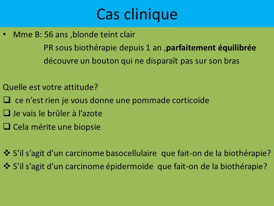 Cas clinique Mme B: 56 ans ,blonde teint clair
