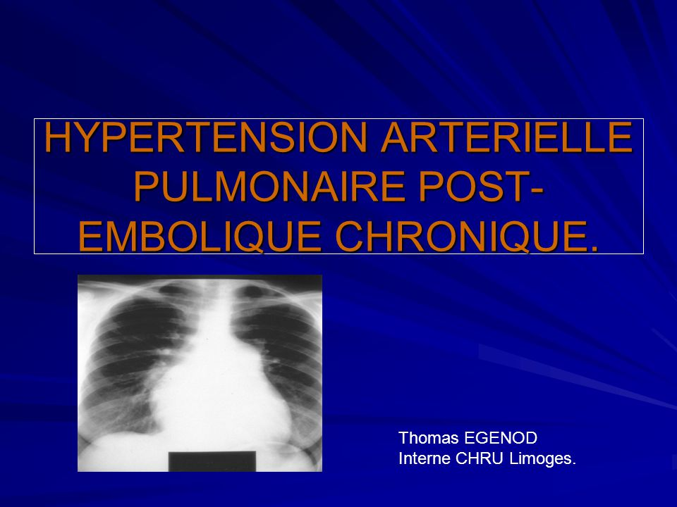 HYPERTENSION ARTERIELLE PULMONAIRE POST-EMBOLIQUE CHRONIQUE.
