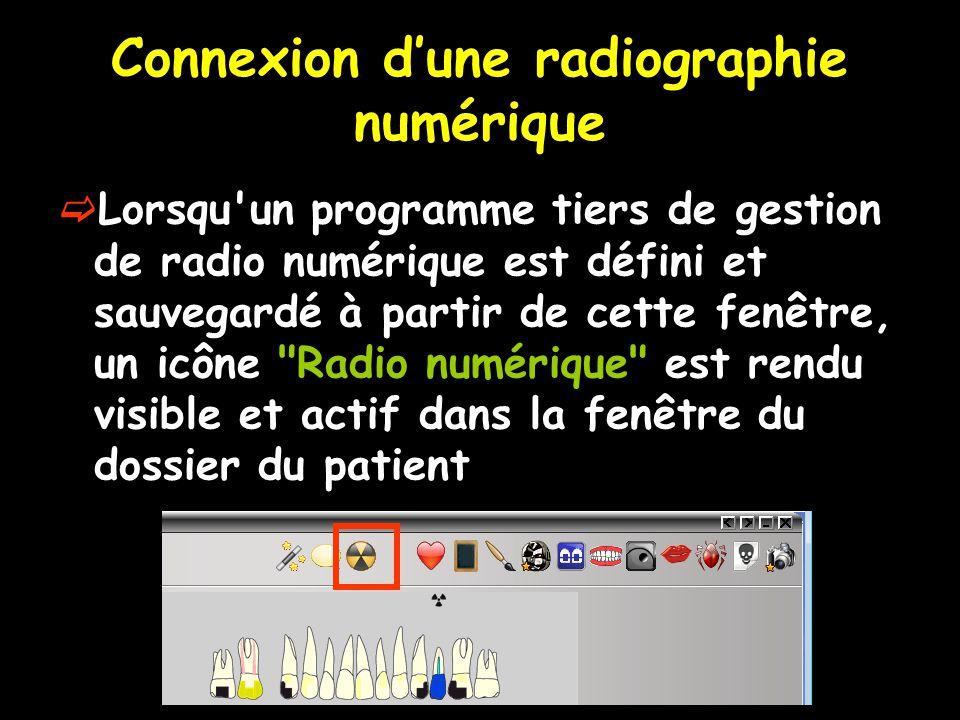 Connexion d'une radiographie numérique