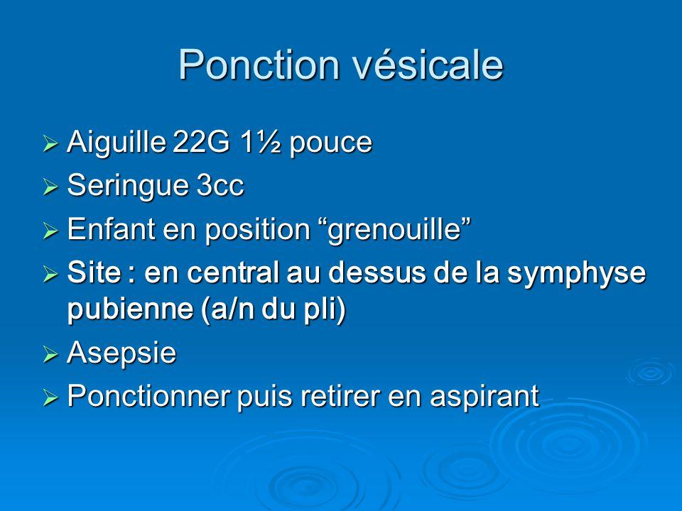 Ponction vésicale Aiguille 22G 1½ pouce Seringue 3cc