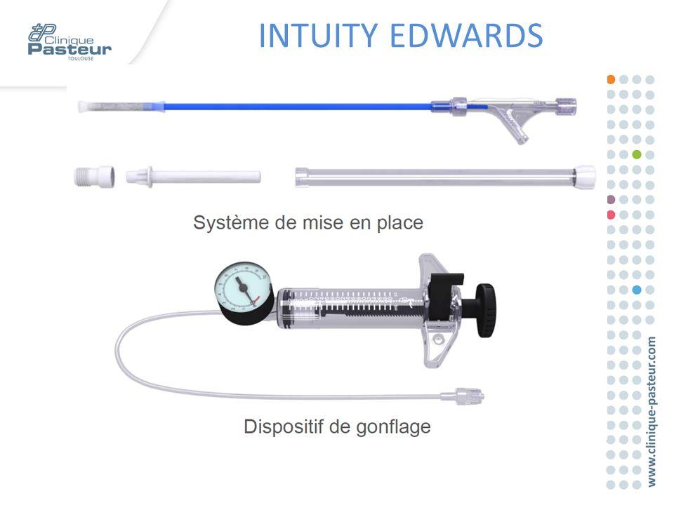 INTUITY EDWARDS Matériel