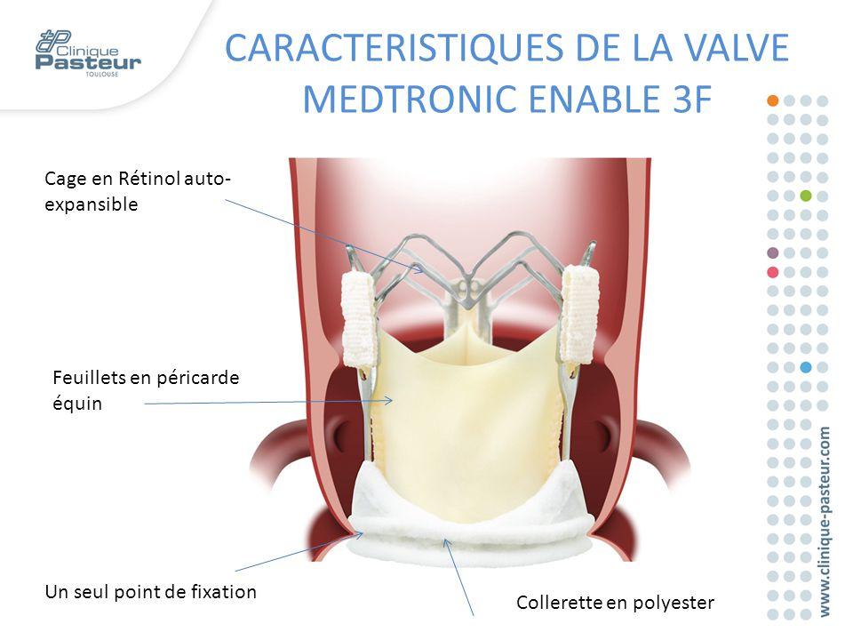 CARACTERISTIQUES DE LA VALVE MEDTRONIC ENABLE 3F