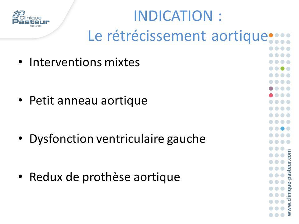 INDICATION : Le rétrécissement aortique