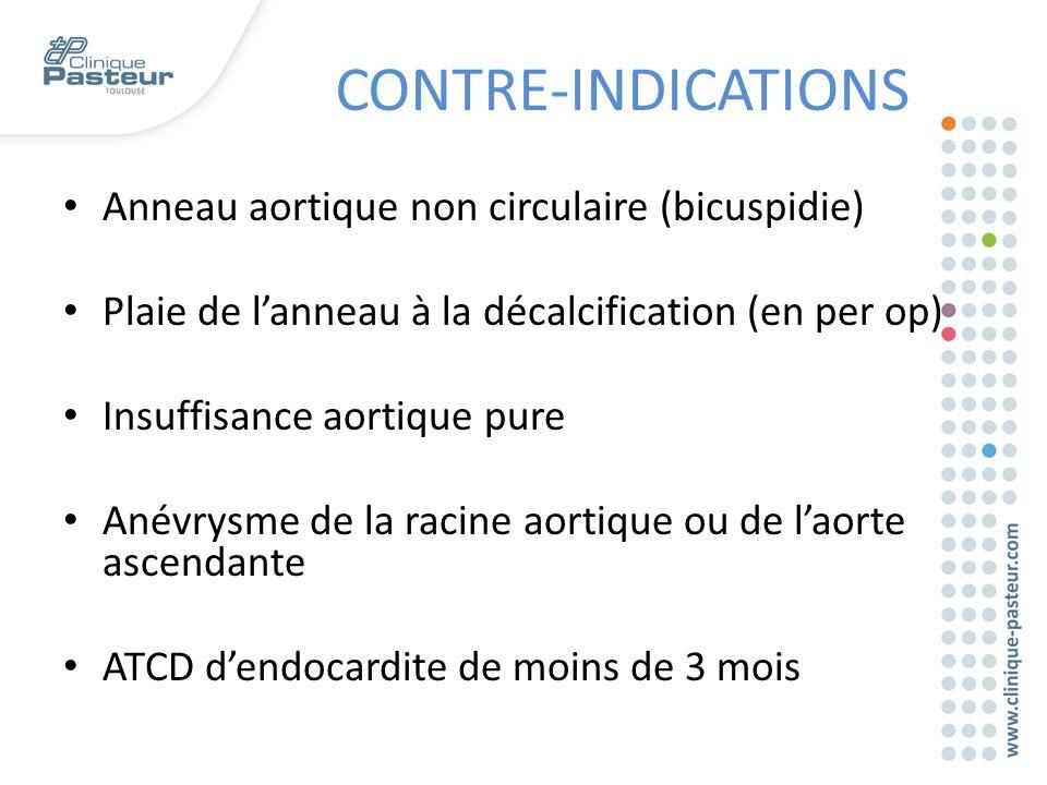 CONTRE-INDICATIONS Anneau aortique non circulaire (bicuspidie)