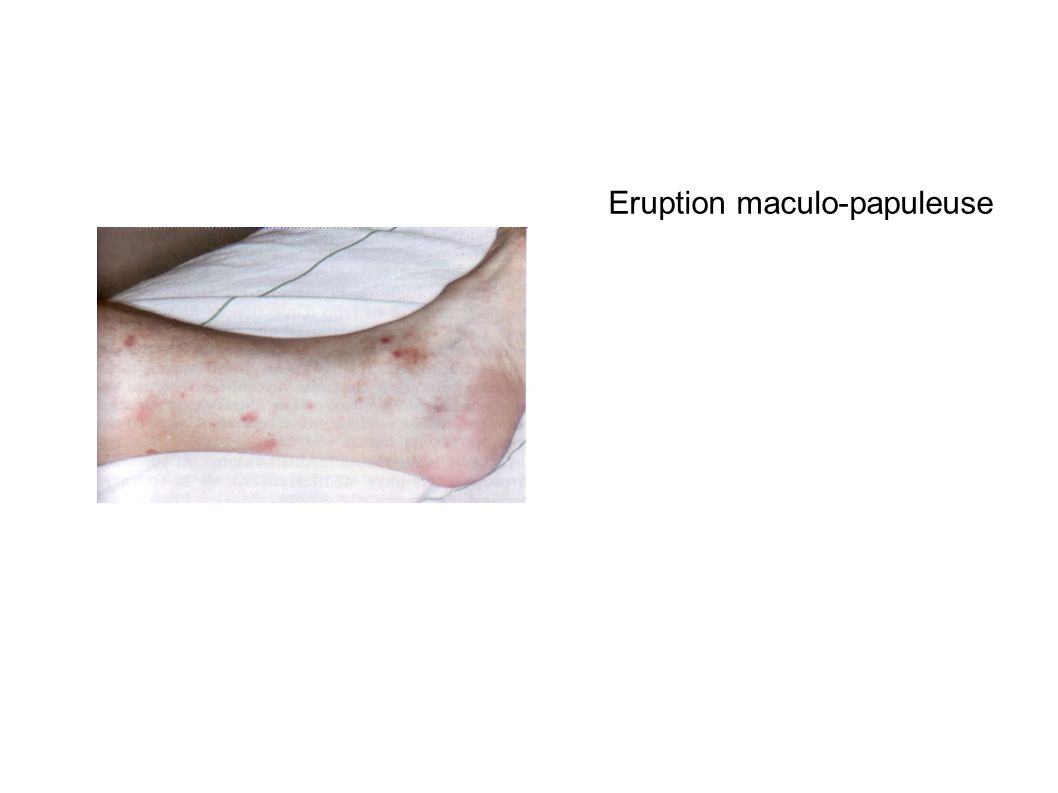 ErEruption maculo-papuleuse